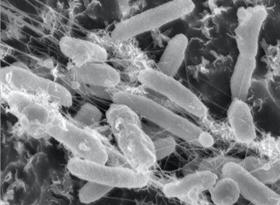 bacteria que come plastico 1